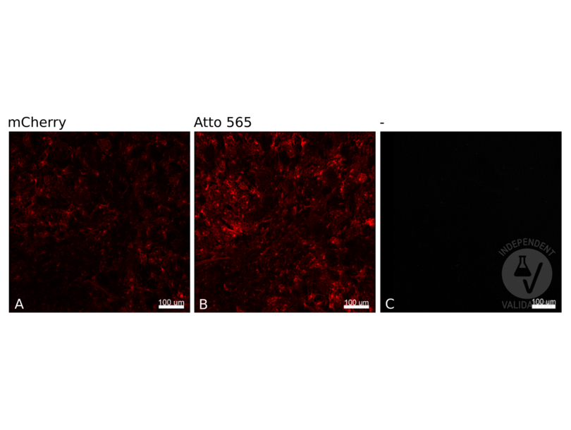 Immunofluorescence validation image for anti-Red Fluorescent Protein (RFP) antibody (Atto 565) (ABIN4368323)