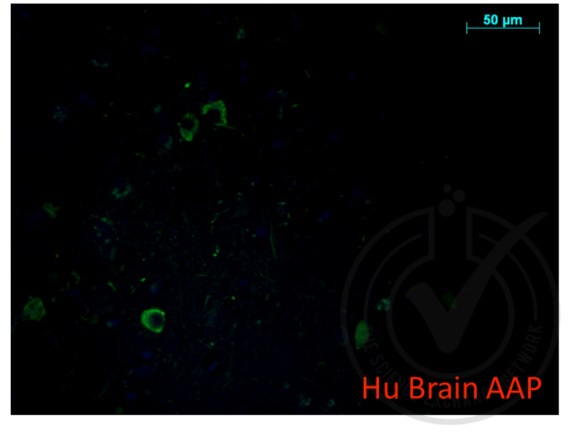 Immunofluorescence validation image for anti-Amyloid beta (A4) Precursor Protein (APP) (AA 666-670) antibody (ABIN197433)