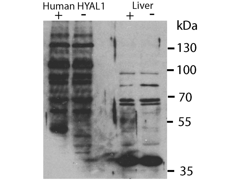 Western Blotting validation image for anti-Hyaluronidase-1 (HYAL1) (N-Term) antibody (ABIN2784342)