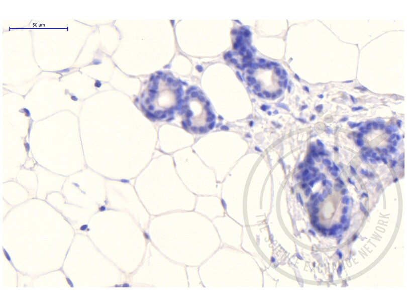 Immunohistochemistry validation image for anti-Clathrin (AA 4-171) antibody (ABIN968006)