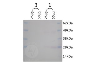 Western Blotting validation image for anti-SNAP Tag antibody (ABIN1573927)