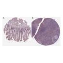 anti-Insulin Receptor Substrate 1 (IRS1) (AA 106-122), (N-Term) antibody