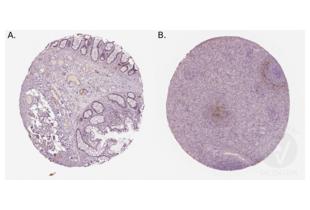 Immunohistochemistry validation image for anti-Mucosal Vascular Addressin Cell Adhesion Molecule 1 (MADCAM1) (AA 173-190), (Middle Region) antibody (ABIN3044076)