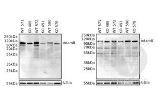 Western Blotting validation image for anti-ADAM Metallopeptidase Domain 8 (ADAM8) (AA 145-493) antibody (ABIN1866534)
