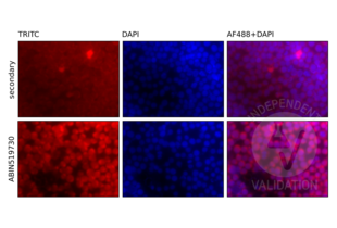 Immunofluorescence validation image for anti-V-Rel Reticuloendotheliosis Viral Oncogene Homolog B (RELB) (AA 1-579) antibody (ABIN519730)