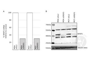 Western Blotting validation image for anti-serine/arginine-Rich Splicing Factor 5 (SRSF5) (AA 1-272) antibody (ABIN948457)