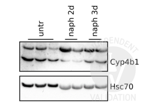 Western Blotting validation image for anti-Cytochrome P450, Family 4, Subfamily B, Polypeptide 1 (CYP4B1) (N-Term) antibody (ABIN2777006)