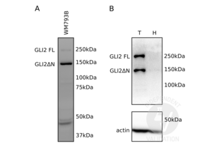 Western Blotting validation image for anti-GLI Family Zinc Finger 2 (GLI2) (Middle Region) antibody (ABIN2777474)