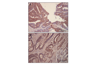 Immunohistochemistry validation image for anti-GLI Family Zinc Finger 2 (GLI2) (Middle Region) antibody (ABIN2777474)