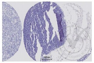 Immunohistochemistry validation image for anti-Tight Junction Protein 1 (Zona Occludens 1) (TJP1) (AA 1670-1720) antibody (ABIN675024)