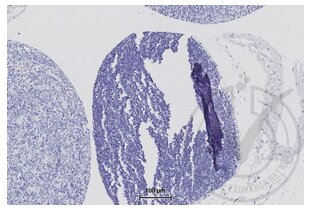 Immunohistochemistry validation image for anti-Tight Junction Protein 1 (Zona Occludens 1) (TJP1) (AA 1670-1720) antibody (ABIN675024)