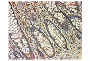 Immunohistochemistry validation image for anti-Transforming Growth Factor, beta Receptor 1 (TGFBR1) (AA 310-360) antibody (ABIN671256)