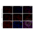 anti-Androgen Receptor antibody (AR)
