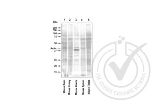 Western Blotting validation image for anti-Actin, beta (ACTB) (AA 2-16) antibody (ABIN1742508)