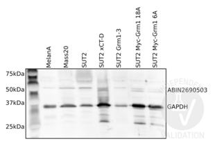Western Blotting validation image for anti-Solute Carrier Family 1 (Glial High Affinity Glutamate Transporter), Member 3 (SLC1A3) (Cytoplasmic Domain) antibody (ABIN2690503)