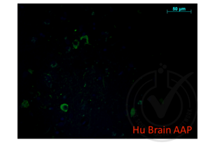 anti-Amyloid beta (A4) Precursor Protein (APP) (AA 666-670) antibody