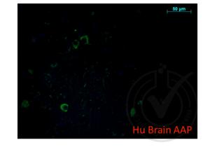 anti-Amyloid beta (A4) Precursor Protein (APP) (AA 666-670) antibody