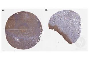 Immunohistochemistry validation image for anti-Nucleoside diphosphate kinase B (NME2) (AA 137-152), (C-Term) antibody (ABIN3044198)