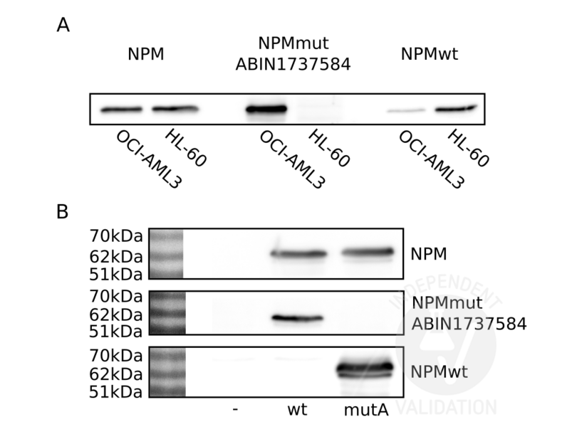 Western Blotting validation image for anti-Nucleophosmin (Nucleolar phosphoprotein B23, Numatrin) (NPM1) (AA 250-298), (C-Term) antibody (ABIN1737584)