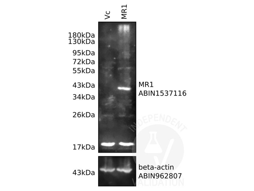 Western Blotting validation image for anti-Actin, beta (ACTB) antibody (ABIN962807)