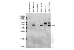 Immunoprecipitation validation image for anti-Major Histocompatibility Complex, Class I-Related (MR1) (AA 201-300) antibody (ABIN516526)