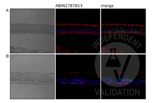 Immunohistochemistry validation image for anti-Nardilysin (N-Arginine Dibasic Convertase) (NRD1) (Middle Region) antibody (ABIN2787813)