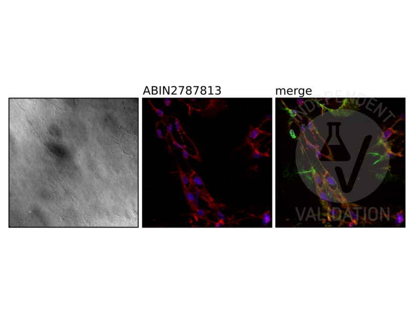 Immunohistochemistry validation image for anti-Nardilysin (N-Arginine Dibasic Convertase) (NRD1) (Middle Region) antibody (ABIN2787813)