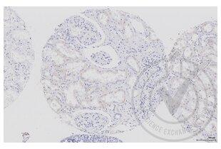 anti-Aquaporin 2 (Collecting Duct) (AQP2) (AA 177-202) antibody (3)