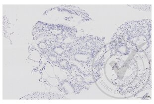 Immunohistochemistry validation image for anti-Aquaporin 2 (Collecting Duct) (AQP2) (AA 177-202) antibody (ABIN707576)