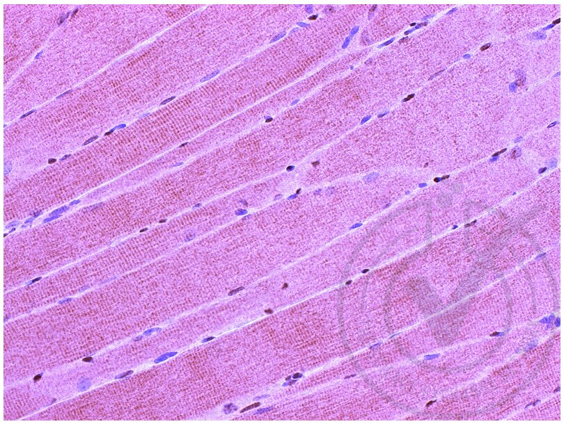 Immunohistochemistry validation image for anti-CD4 Molecule (CD4) (AA 420-457) antibody (ABIN671376)