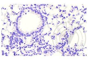anti-Coagulation Factor III (thromboplastin, Tissue Factor) (F3) (AA 40-90) antibody (3)