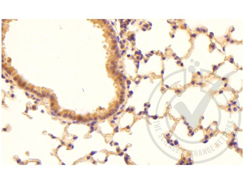 Immunohistochemistry validation image for anti-Coagulation Factor III (thromboplastin, Tissue Factor) (F3) (AA 40-90) antibody (ABIN708086)