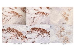 Immunohistochemistry validation image for anti-Colony Stimulating Factor 1 Receptor (CSF1R) (pTyr723) antibody (ABIN683788)