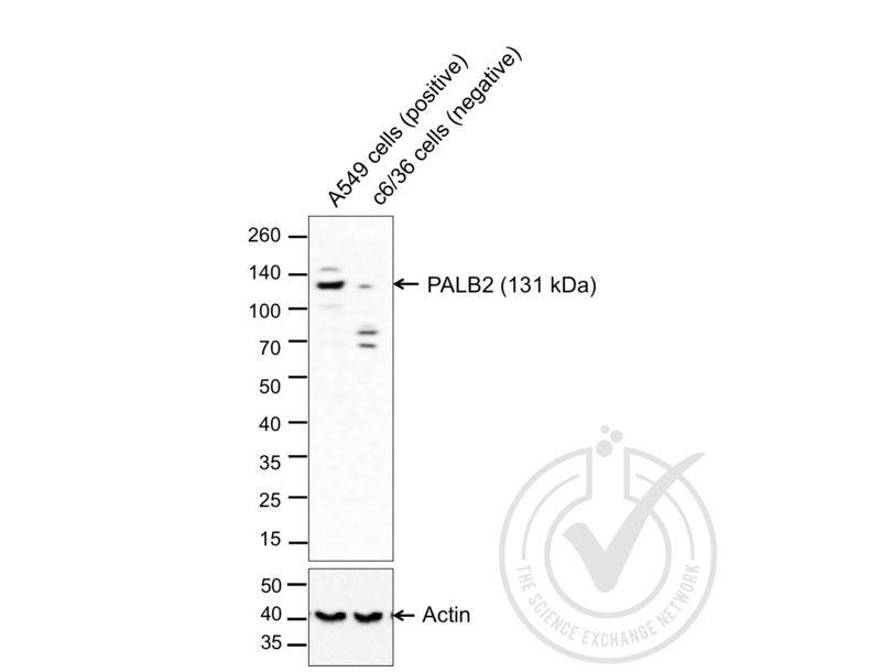 Western Blotting validation image for anti-Partner and Localizer of BRCA2 (PALB2) (AA 1100-1150) antibody (ABIN670536)