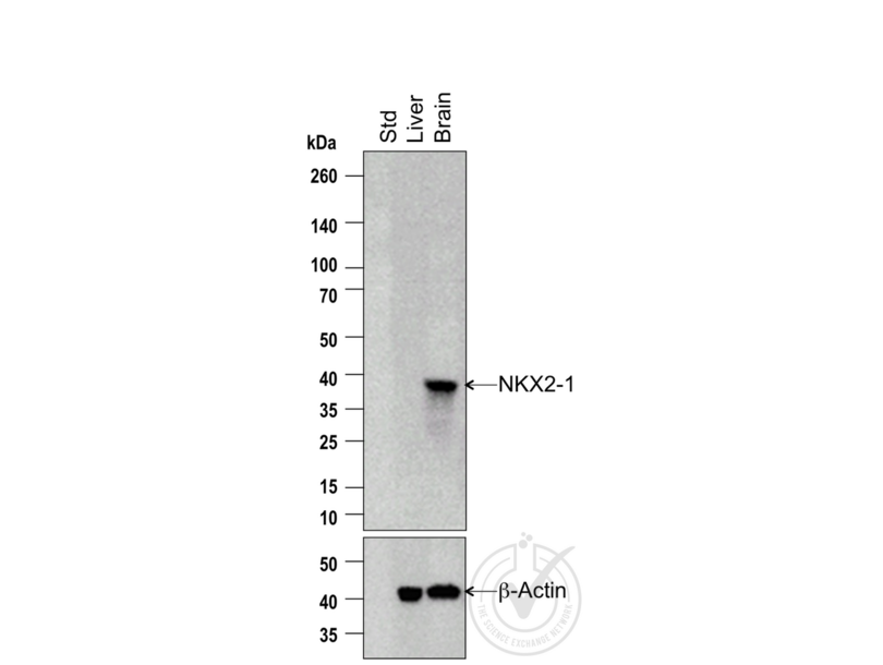 Western Blotting validation image for anti-TTF-1 / Thyroid-Specific TF (AA 195-245) antibody (ABIN728713)