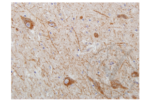 Immunohistochemistry validation image for anti-Wingless-Type MMTV Integration Site Family Member 2 (WNT2) (AA 240-290) antibody (ABIN762896)