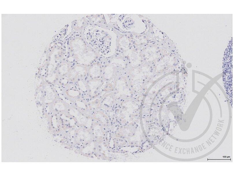 Immunohistochemistry validation image for anti-Wingless-Type MMTV Integration Site Family, Member 2B (WNT2B) (AA 341-391) antibody (ABIN675728)