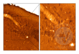 Immunohistochemistry validation image for anti-Chromogranin A (CHGA) antibody (ABIN617895)
