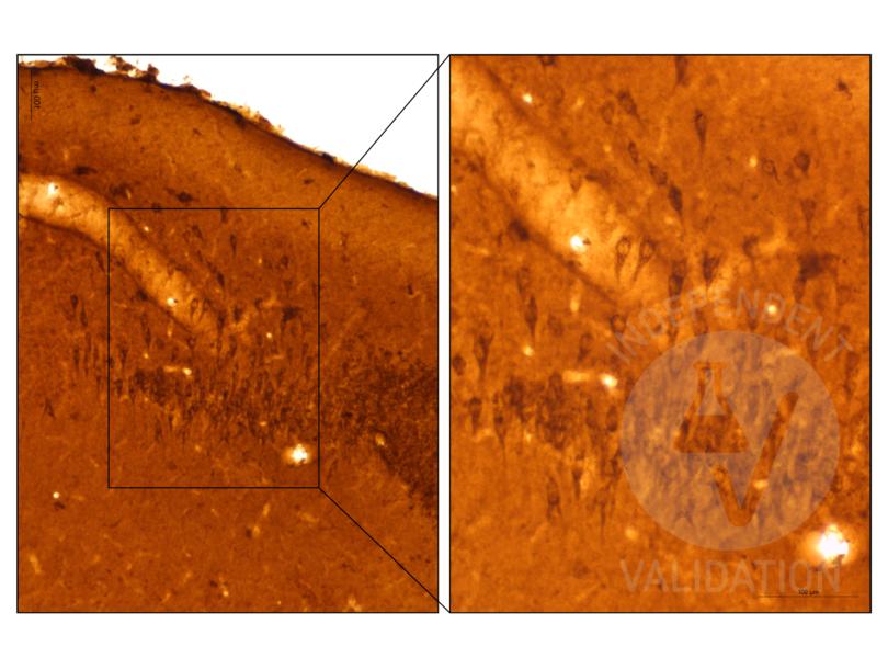 Immunohistochemistry validation image for anti-Chromogranin A (CHGA) antibody (ABIN617895)