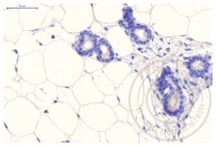 anti-Clathrin (AA 4-171) antibody (2)