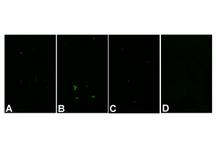 Immunohistochemistry validation image for anti-Caspase 3, Apoptosis-Related Cysteine Peptidase (CASP3) (active), (Cleavage Site), (N-Term) antibody (ABIN222873)