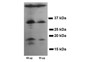 Western Blotting validation image for anti-Caspase 3, Apoptosis-Related Cysteine Peptidase (CASP3) antibody (ABIN3179097)