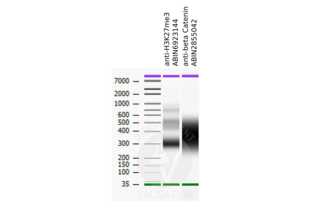 Cleavage Under Targets and Release Using Nuclease validation image for anti-Catenin, beta (N-Term) antibody (ABIN2855042)