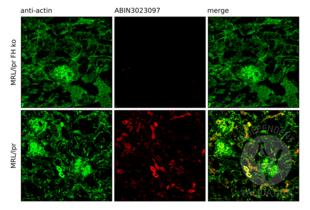 Immunofluorescence validation image for anti-Complement Factor H (CFH) antibody (ABIN3023097)
