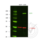 anti-EGFR 抗体 (Epidermal Growth Factor Receptor)