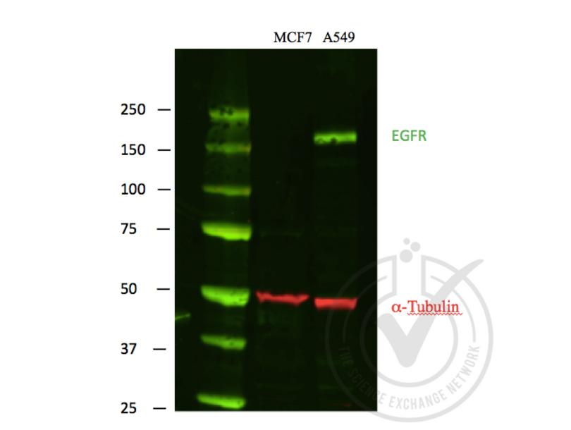 Western Blotting validation image for anti-Epidermal Growth Factor Receptor (EGFR) antibody (ABIN98862)