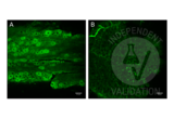Immunofluorescence validation image for anti-Transient Receptor Potential Cation Channel, Subfamily C, Member 5 (TRPC5) (AA 827-845) antibody (FITC) (ABIN2485379)
