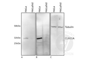 anti-Chloride Channel, Nucleotide-Sensitive, 1A (CLNS1A) antibody