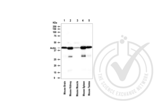anti-Actin, beta (ACTB) (AA 2-16) antibody