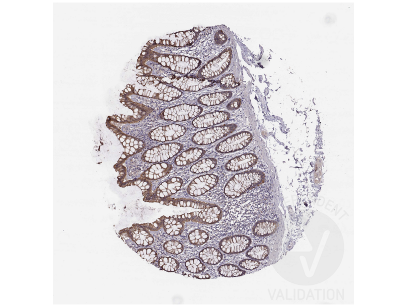 Immunohistochemistry validation image for anti-Hepatitis A Virus Cellular Receptor 1 (HAVCR1) (AA 332-348), (C-Term) antibody (ABIN3044226)